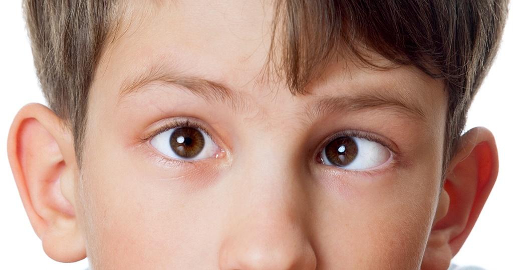 Синдром ленивого глаза-Амблиопия