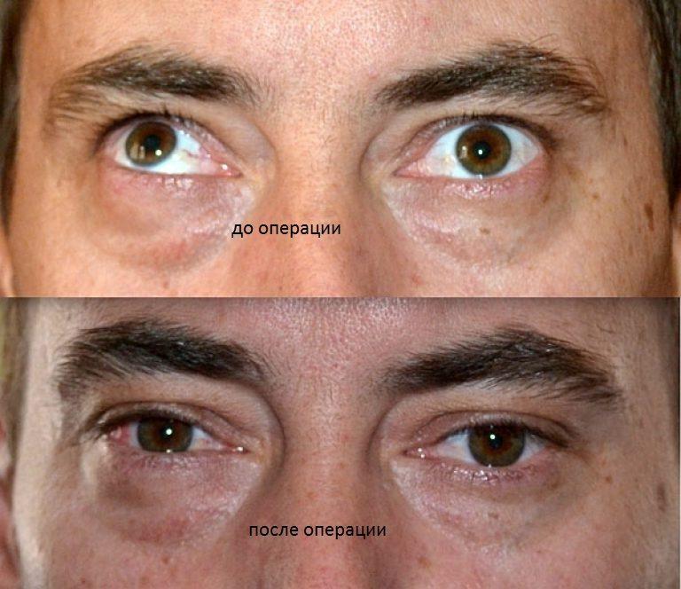 Операция - лечения амблиопии у взрослых