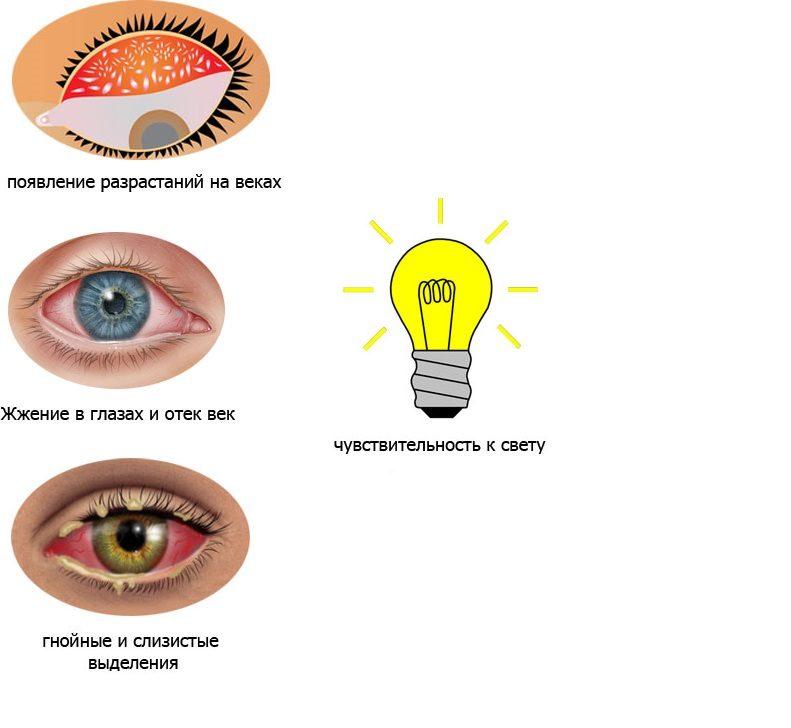 Симптомы конъюнктивита глаз
