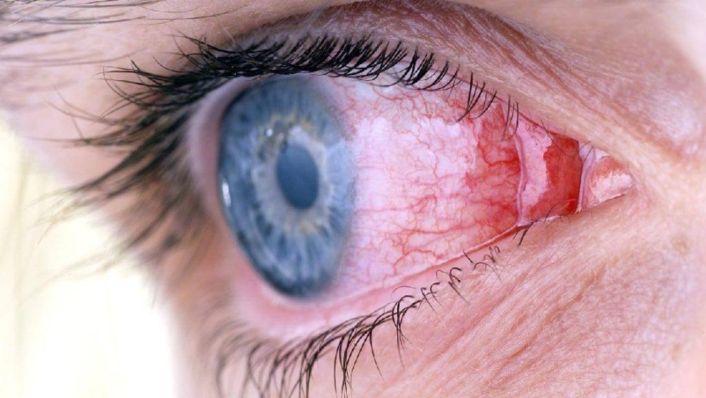 Инфекционный кератит