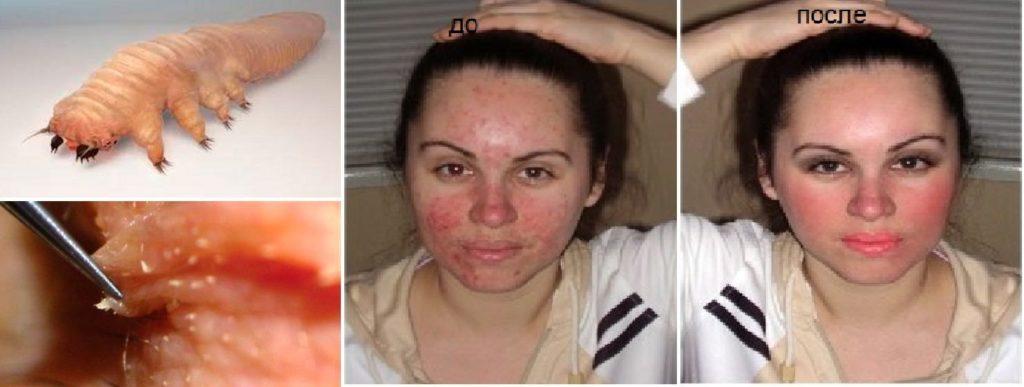 Лечения демодекоза на лице по фото