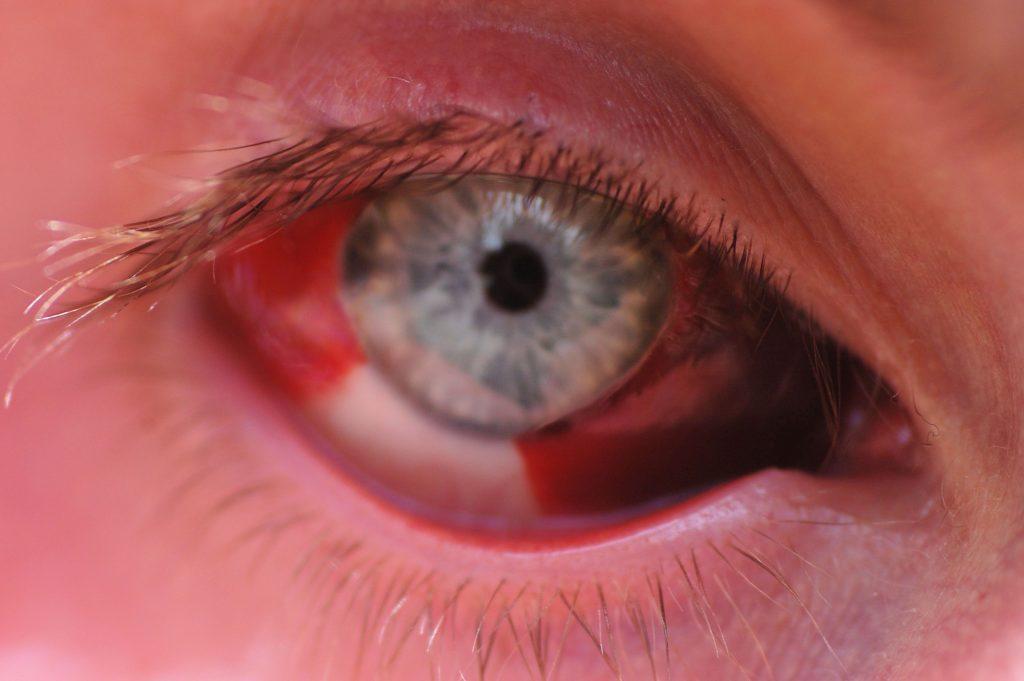 Гемофтальм что это за заболевание. Что нужно знать о Гемофтальме