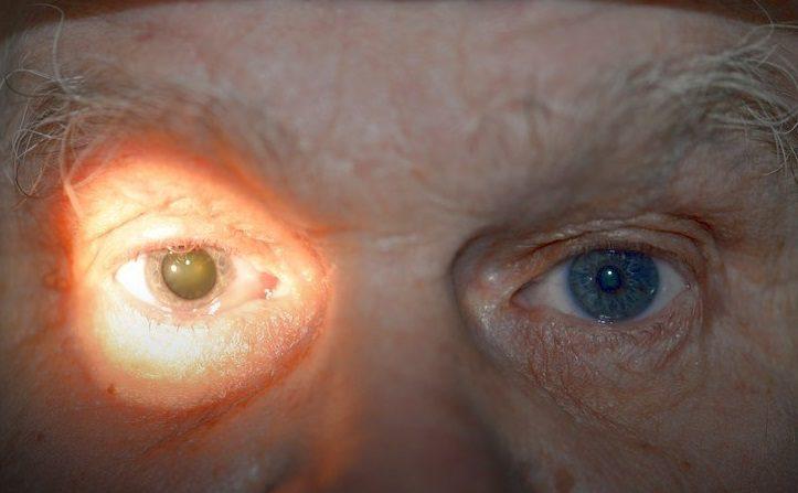 Причины анизокории у взрослых
