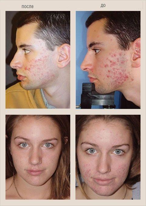 Лечение демодекоза у человека на лице