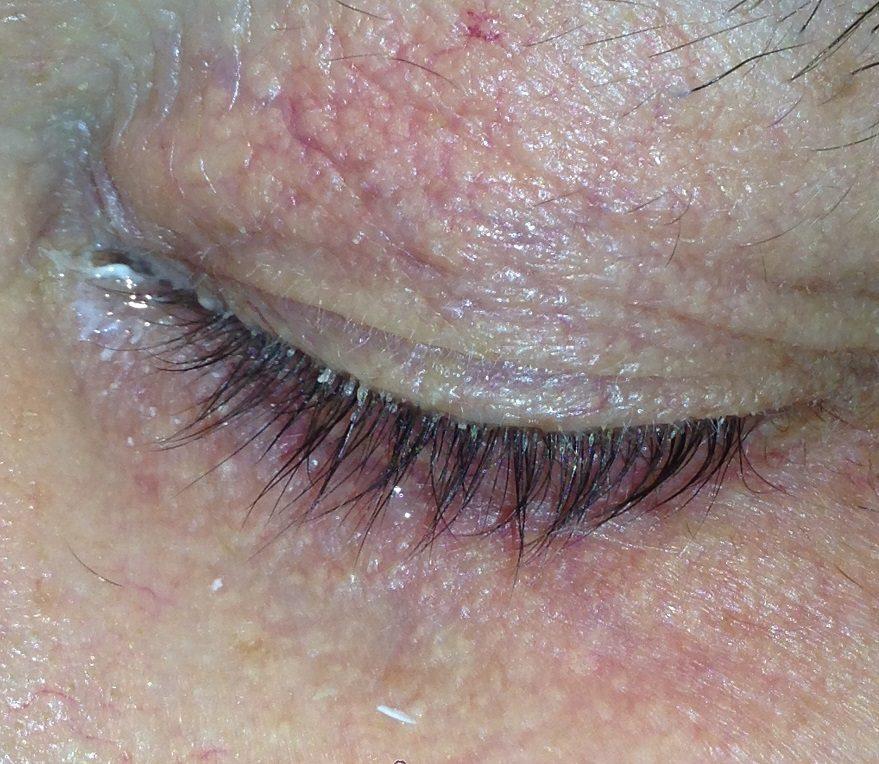 Cимптомы демодекоза глаз