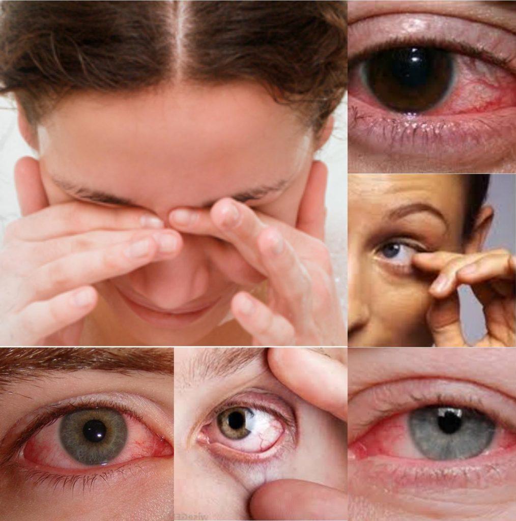 Cиндром сухого глазаили ксерофтальмия