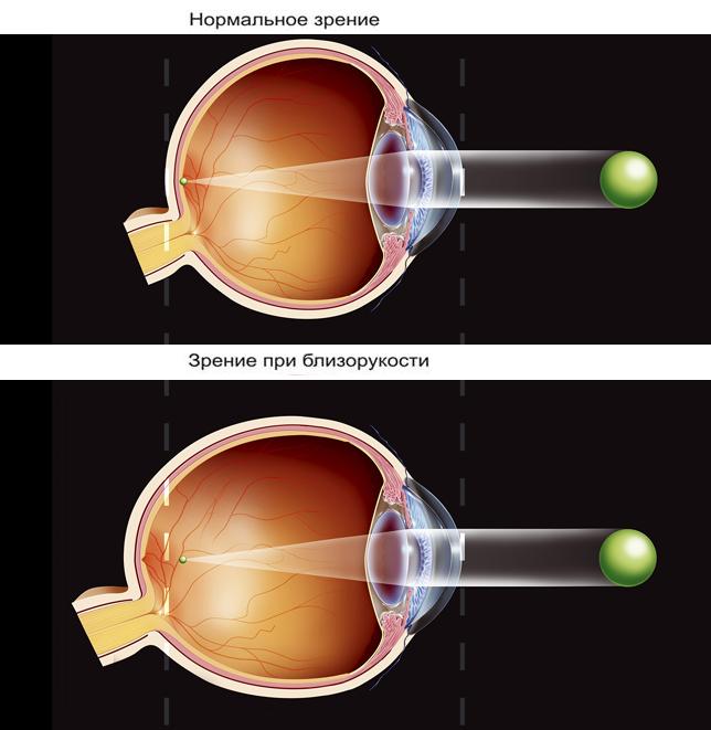 Миопия-близорукость