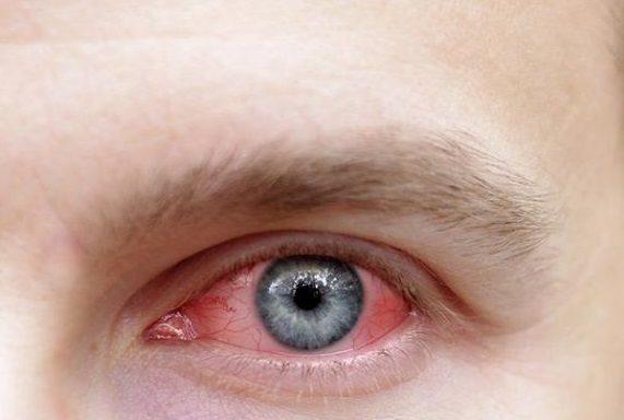 Рецидивирующий гемофтальм