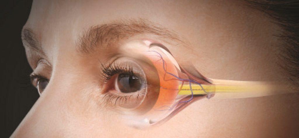 Глаукома-болезнь