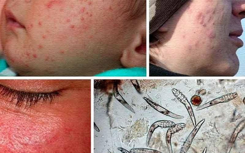Демодекоз лечение на лице