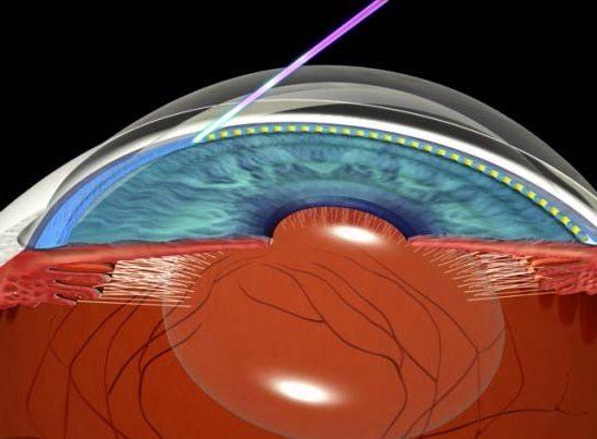 Лазерное лечение первичной глаукомы
