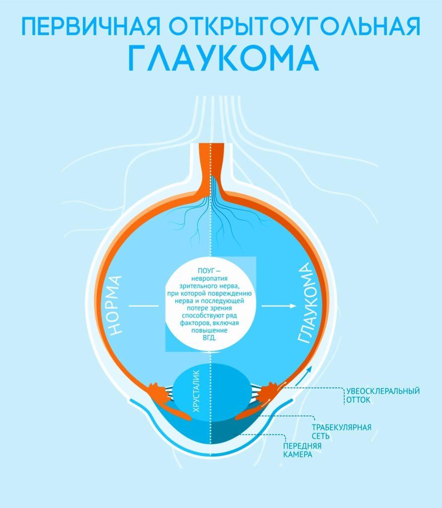 Первичная глаукома.