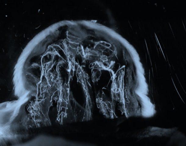 Нитчатая деструкция стекловидного тела