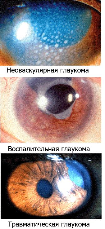 Вторичная глаукома.