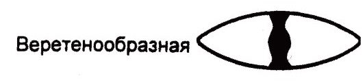 Веретенообразная катаракта