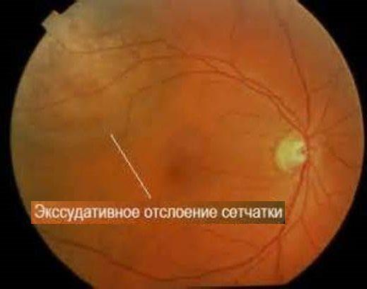 Экссудативная отслойка сетчатки