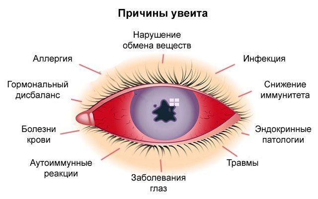 Причины увеита глаз