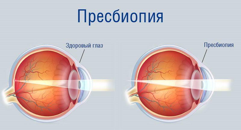 Пресбиопия глаза