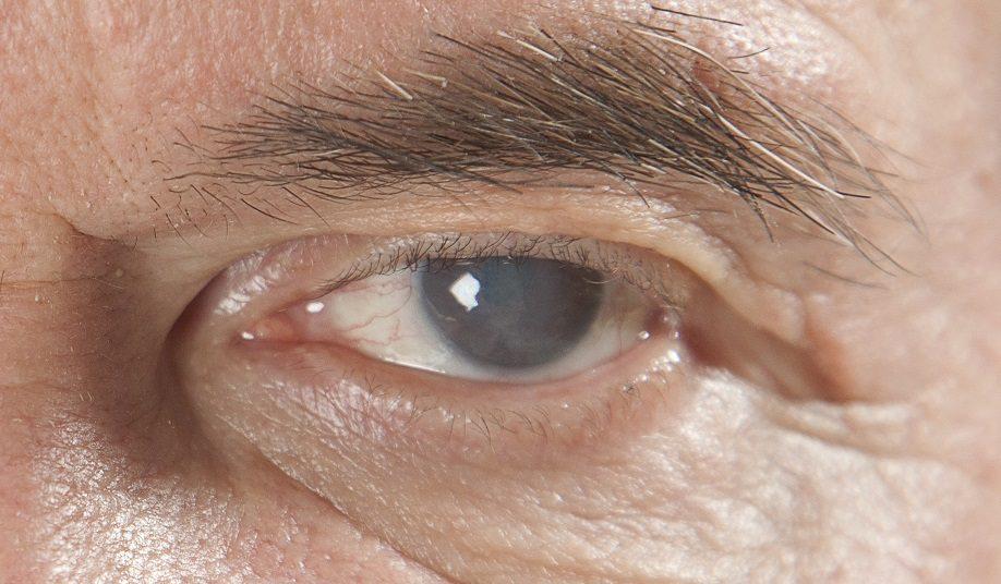 Старческая или возрастная катаракта