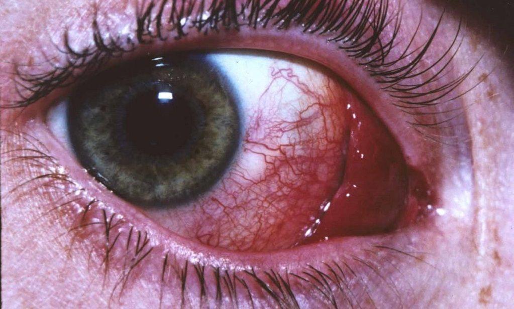 Электроофтальмия глаз