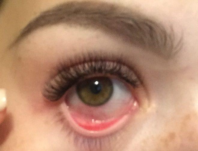 Химический ожог глаза при наращивании ресниц