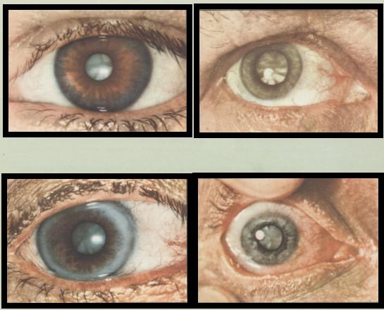 Незрелая катаракты