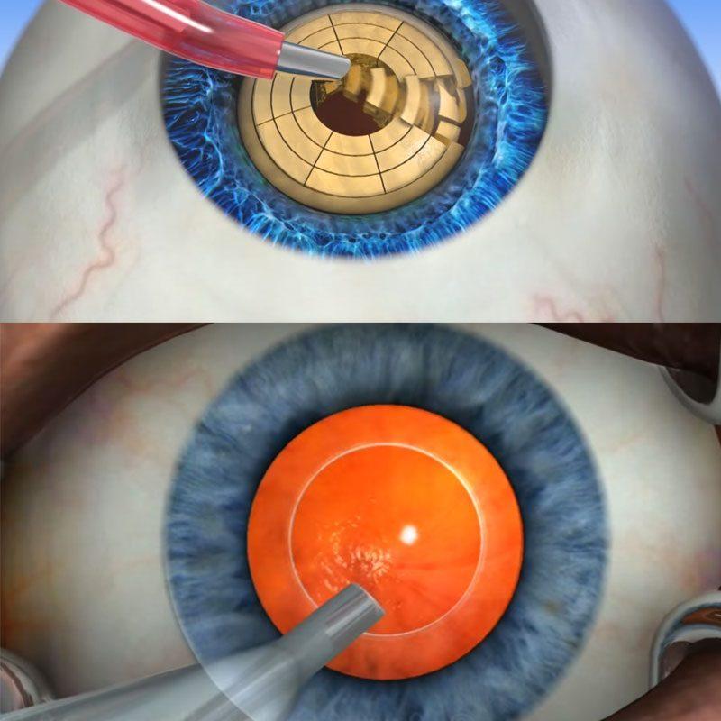 Факоэмульсификация-хирургическое лечение катаракты