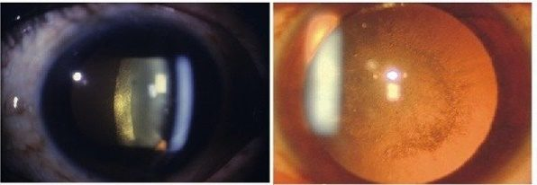 Передняя или задняя субкапсулярная катаракта