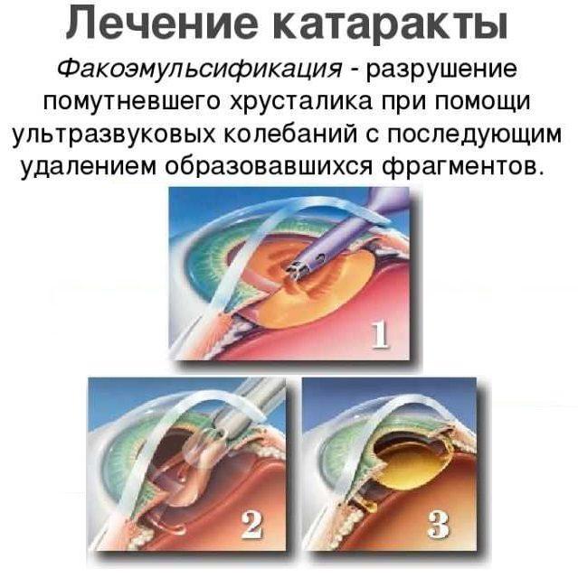 Способы вылечить катаракту без операции у детей и взрослых