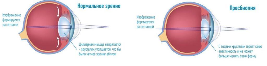 причины пресбиопии