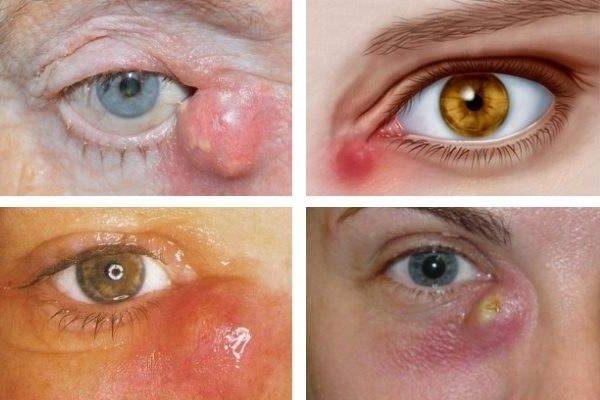 дакриоцистита глаза