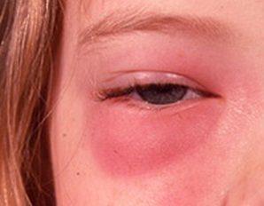 симптомы розацеа глаз