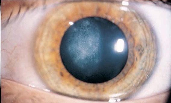 Признаки начинающейся катаракты глаза