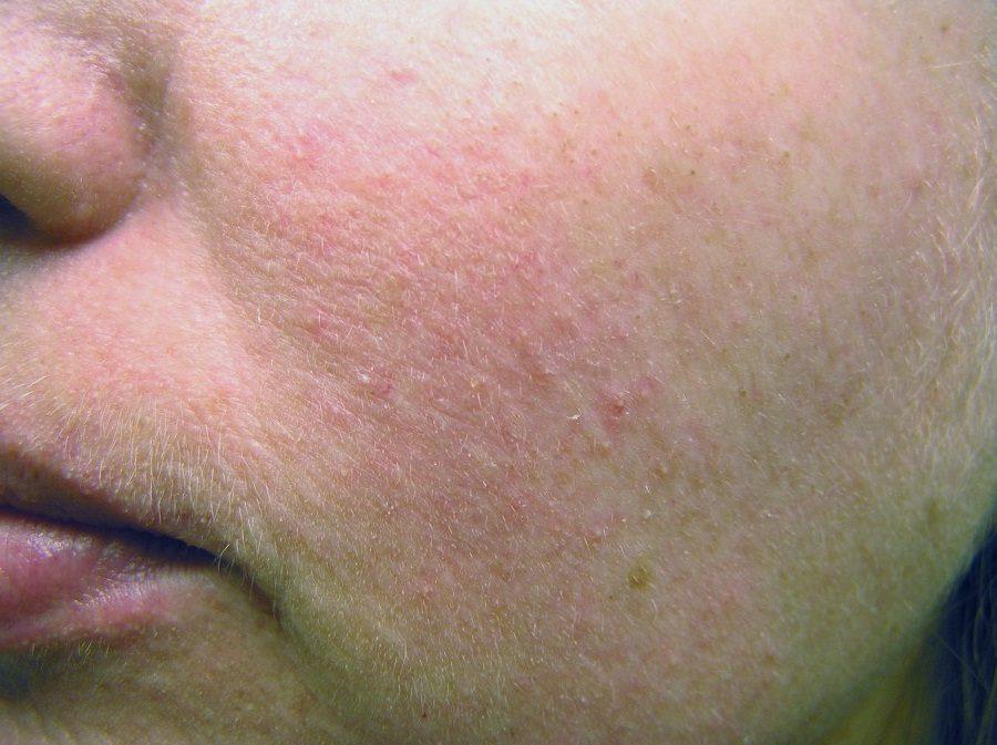 Cимптомы розацеа на лице