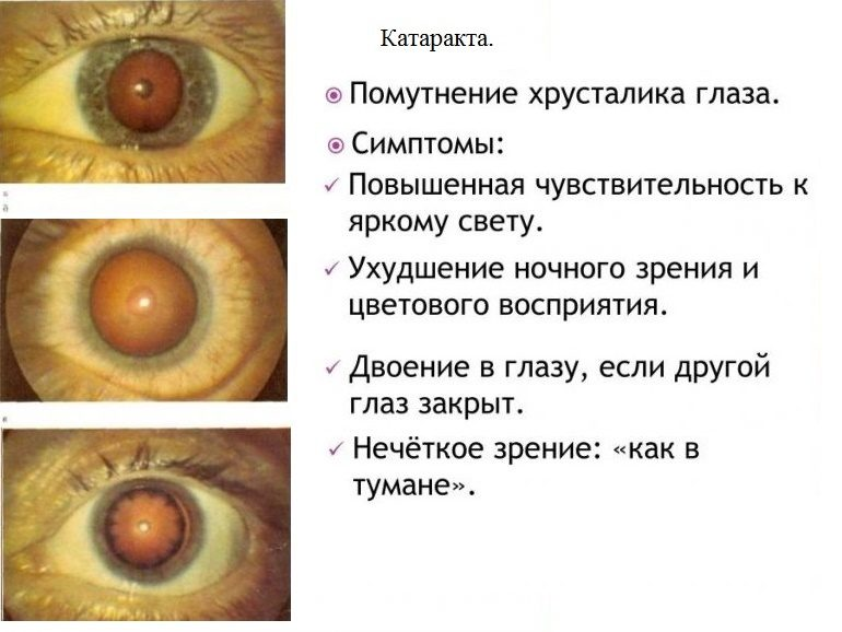 Cимптомы катаракты глаза