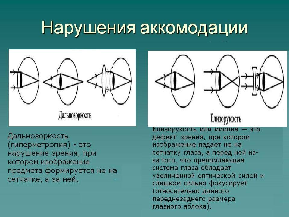 нарушение аккомодации глаза