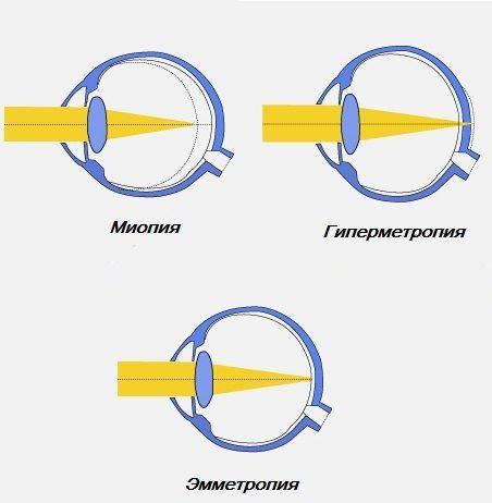 Аметропии глаза