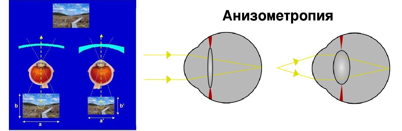 Анизометропия что это такое