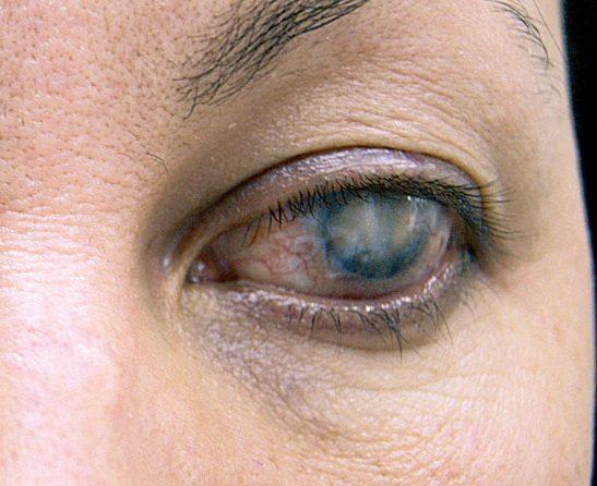 лейкома глаза