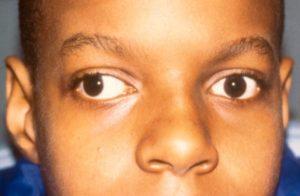 Почему глаза смотрят в разные стороны