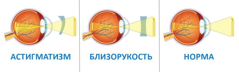 Отличия астигматизма от близорукости (миопии)